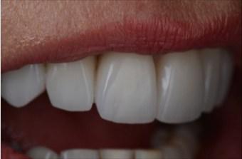 Ann new teeth side view