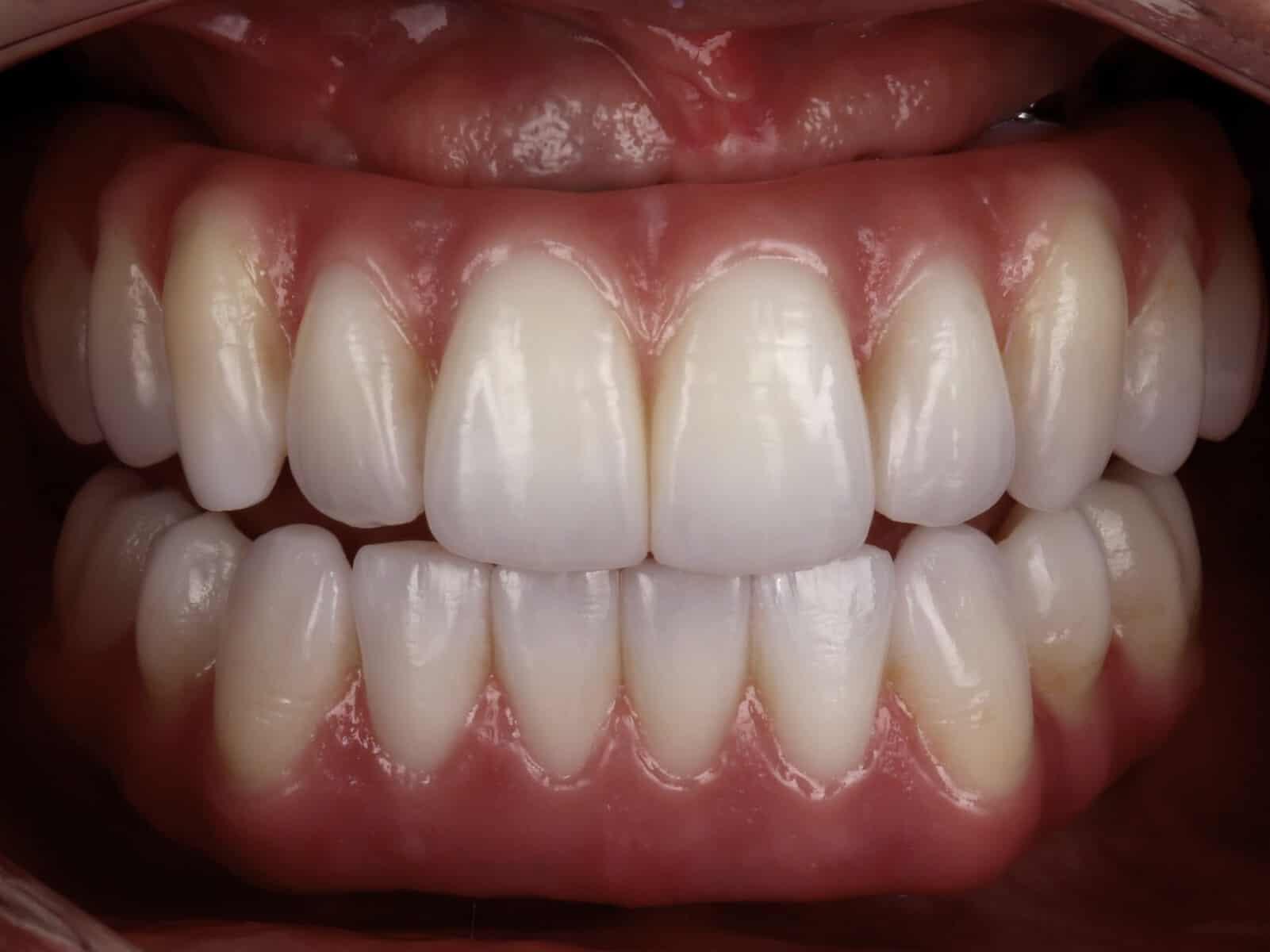 artlab-dentistry-luda-teeth