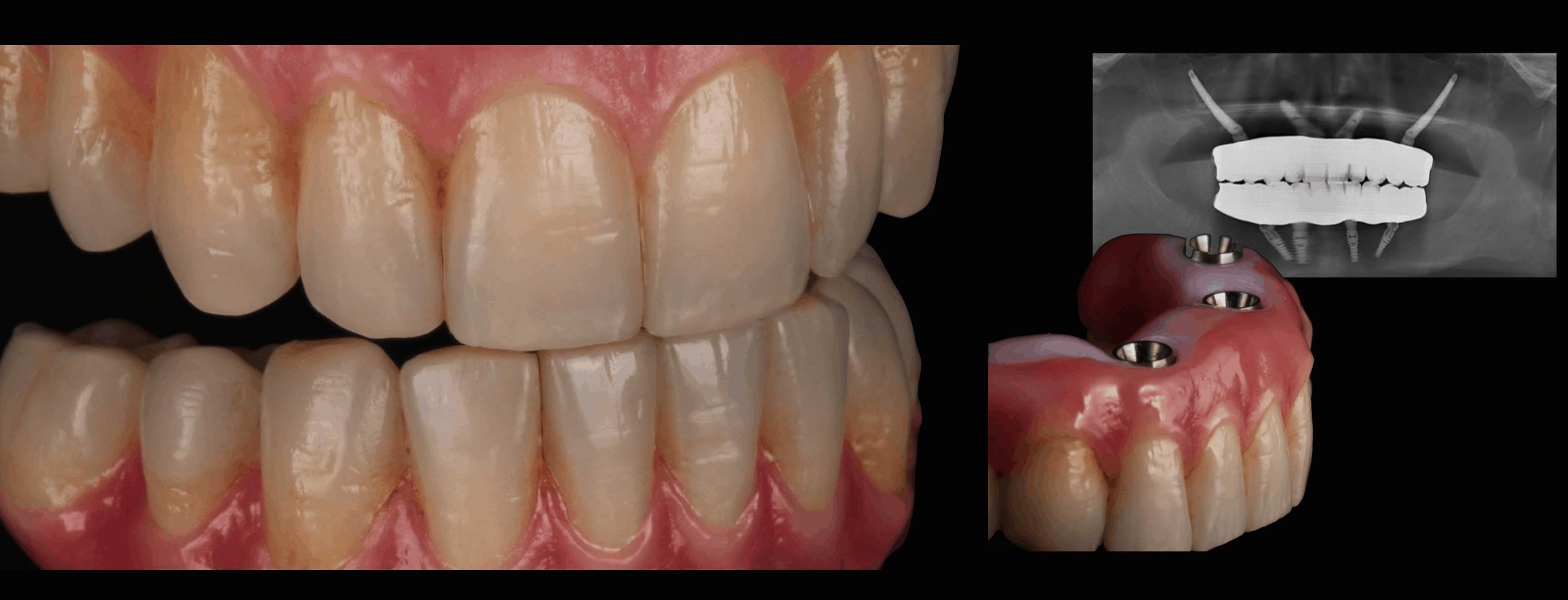 ArtLab Dentistry - xrays of Ferna