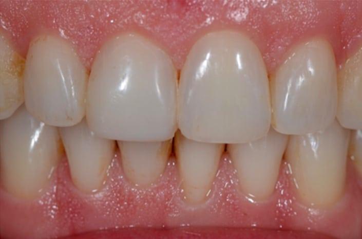 Dental bonding after