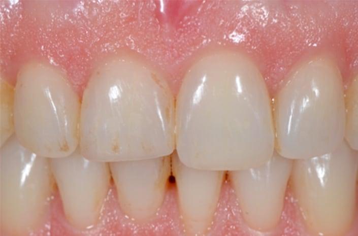 Dental bonding before