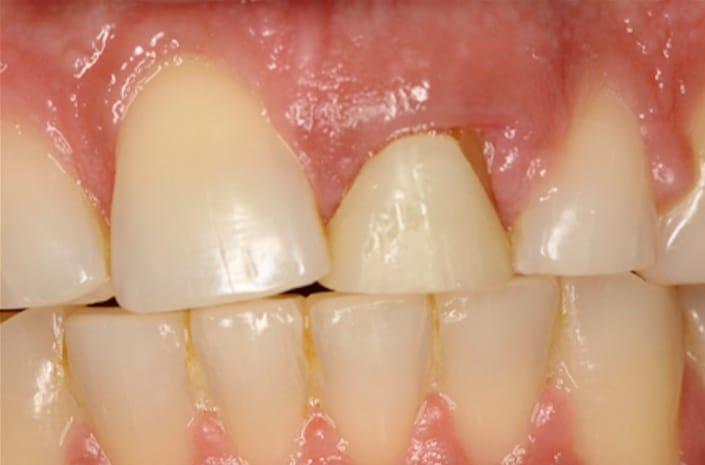 Dental implants before