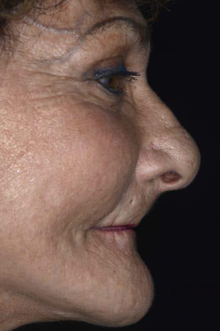Irene - Before - sunken jaw