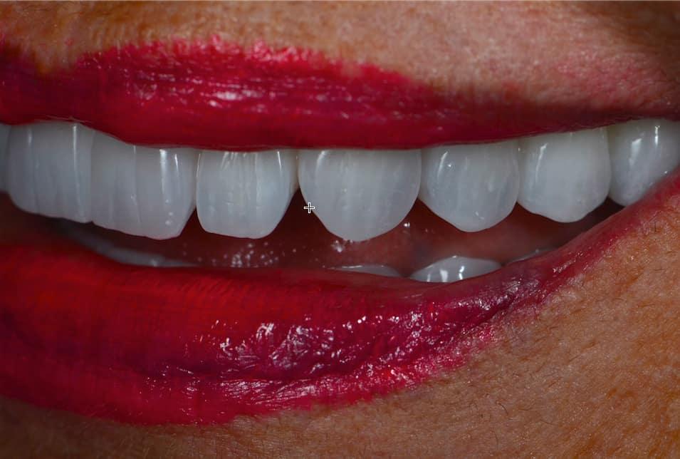 Irene Hasal dental implants