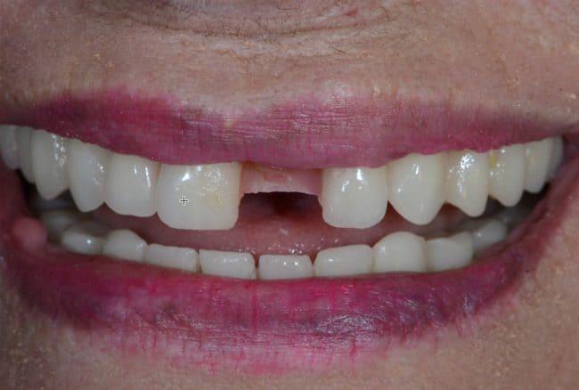 irene-dental-implants-before
