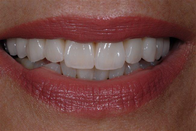 Jane - Beautiful smile and teeth