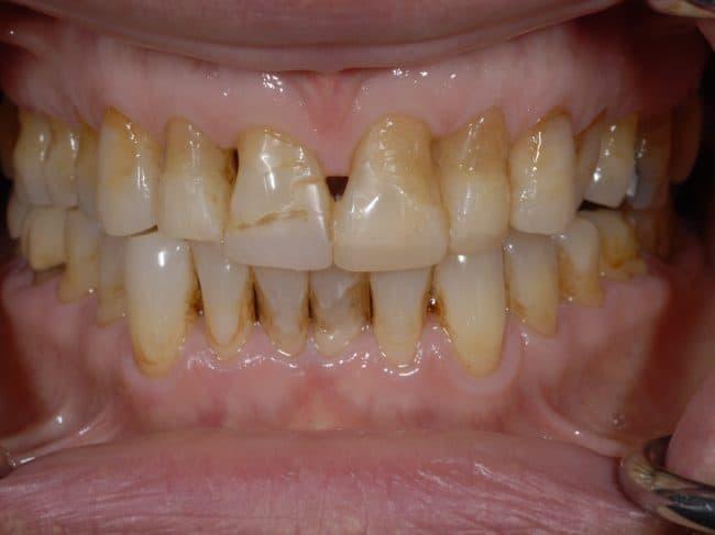 jane-mouth-before-veneers