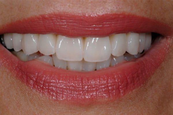 Porcelain veneers | ArtLab Dentistry