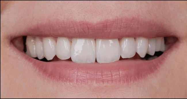 Sara - after dental veneers