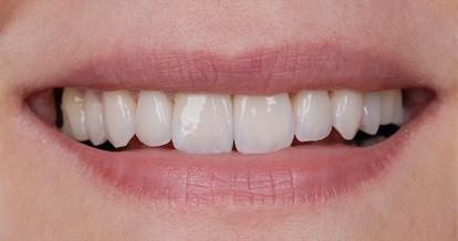 ArtLab Dentistry patient Sara smile after veneers and dental implant