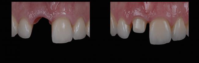 sara-implant