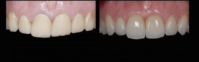 sara-implants