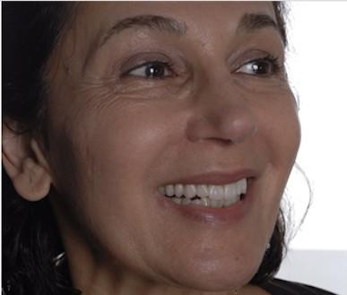 Patient Shahla after receiving porcelain veneers
