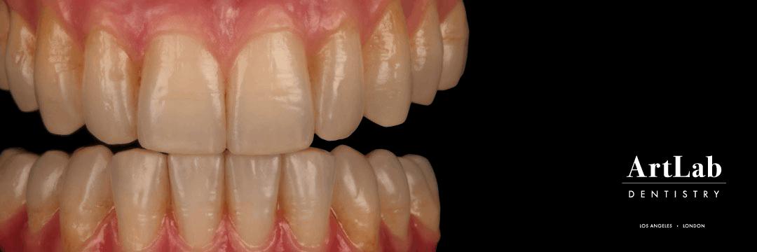 artlab-dentistry-teeth