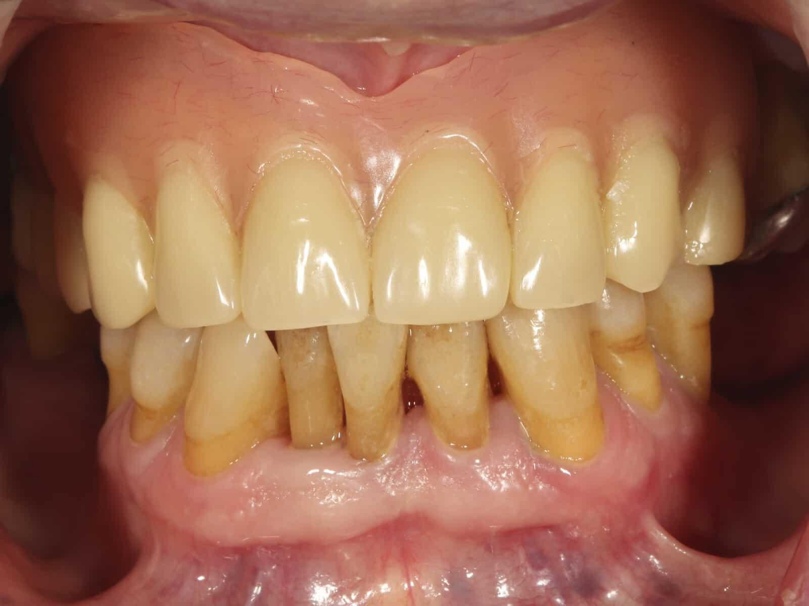 ArtLab Dental - Fernando - Following upper dental implant
