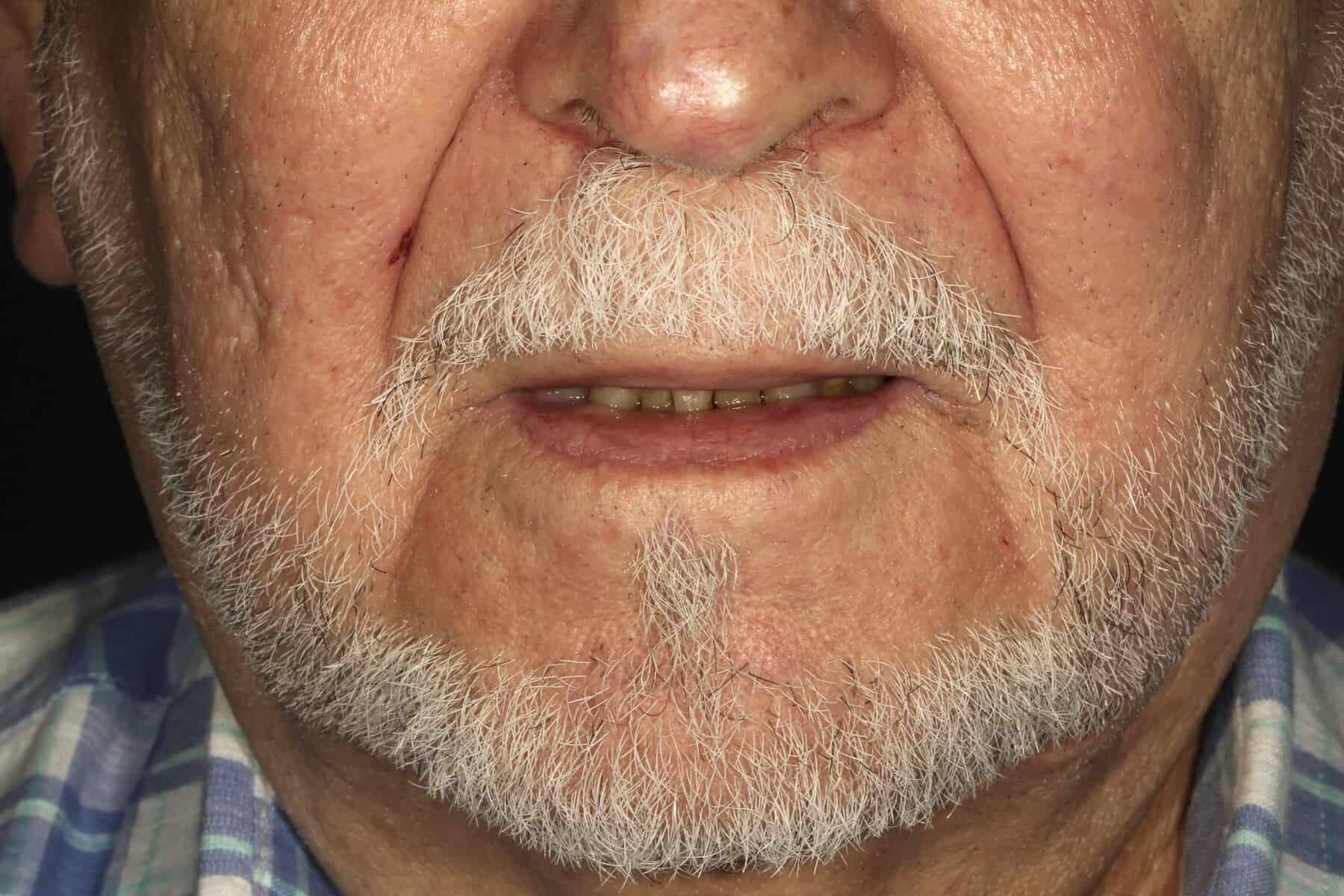 ArtLab Dentistry - teeth