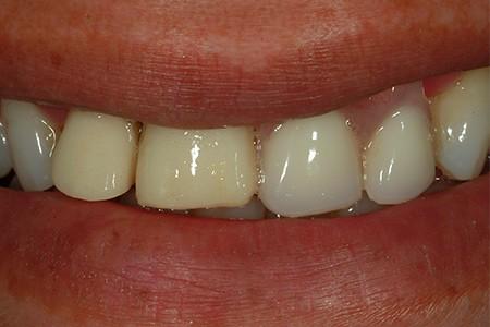 Maria - new dental implant
