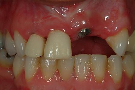 Maria - implant