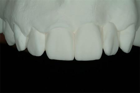 Maria cast mold of new teeth design