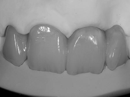 Maria - badly placed dental implants - Figure 7b