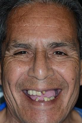 ArtLab Dentistry patient, David before dental rehabilitation.