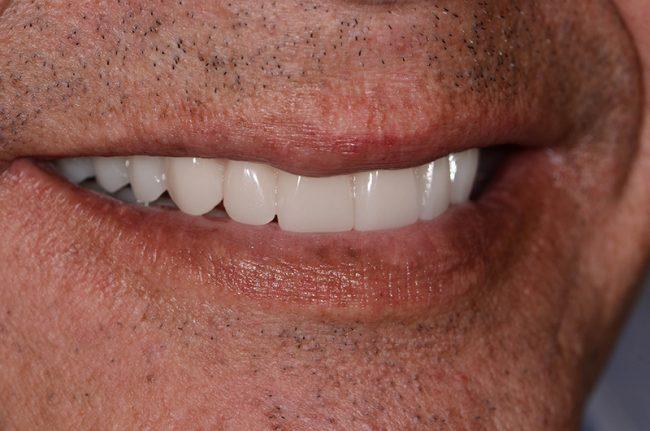 David's beautiful smile and teeth