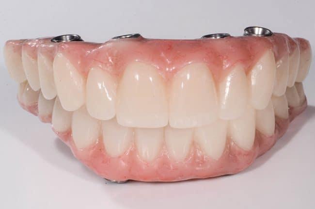 David's all on 4 dental implants