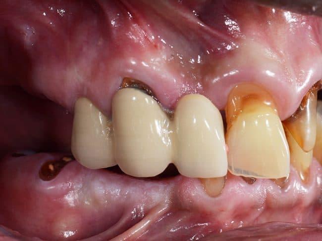 Rotten teeth view- David