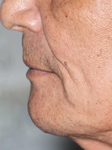 ArtLab Dentistry patient side profile after dental implant restoration