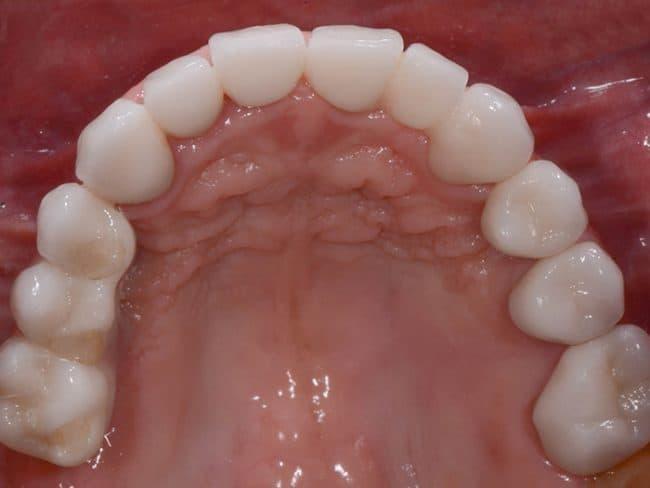 Gloria's top new teeth implant view