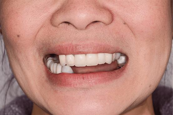 ArtLab Dentistry patient