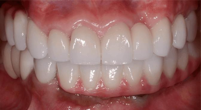 ArtLab Dentistry patient Gloria view of her new teeth