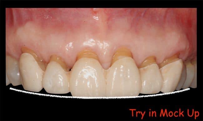 Ninnette - teeth mockup
