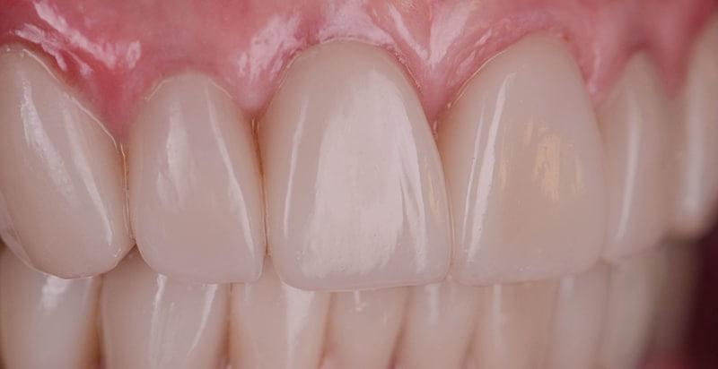 ArtLab Dentistry patient close up of teeth after restoration.