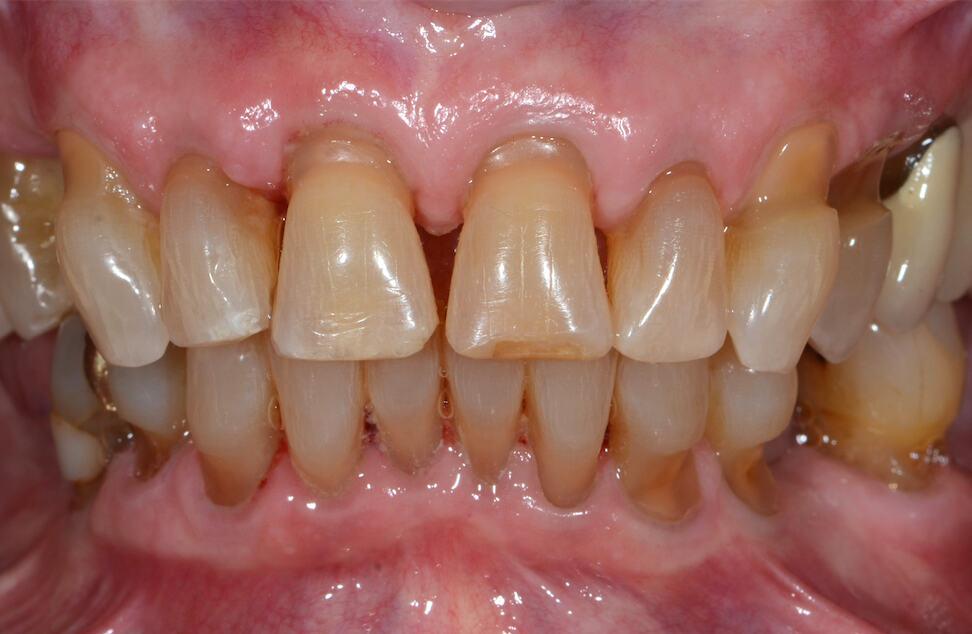 ArtLab Dentistry patient teeth before treatment
