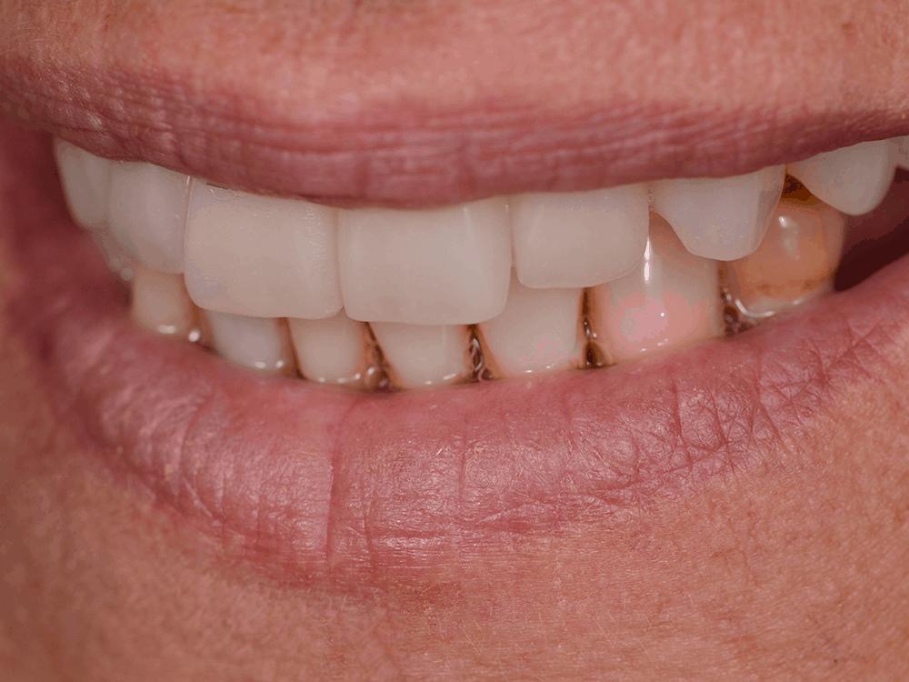 Jayne - view of upper new teeth