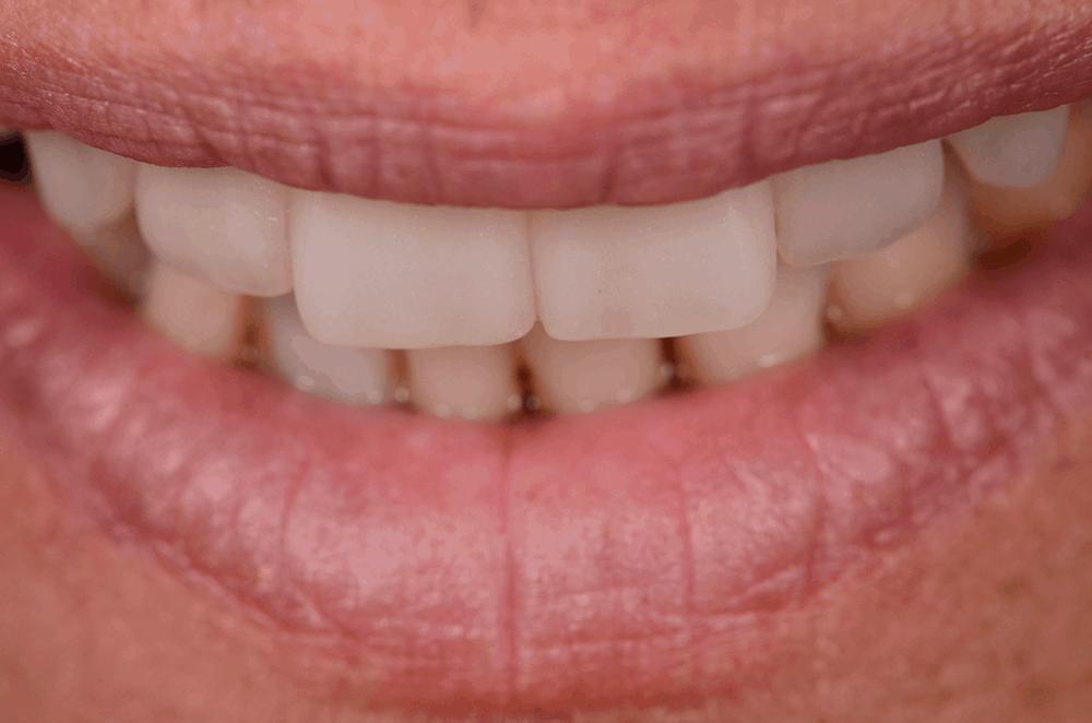 Jayne - front - smile transformation - after