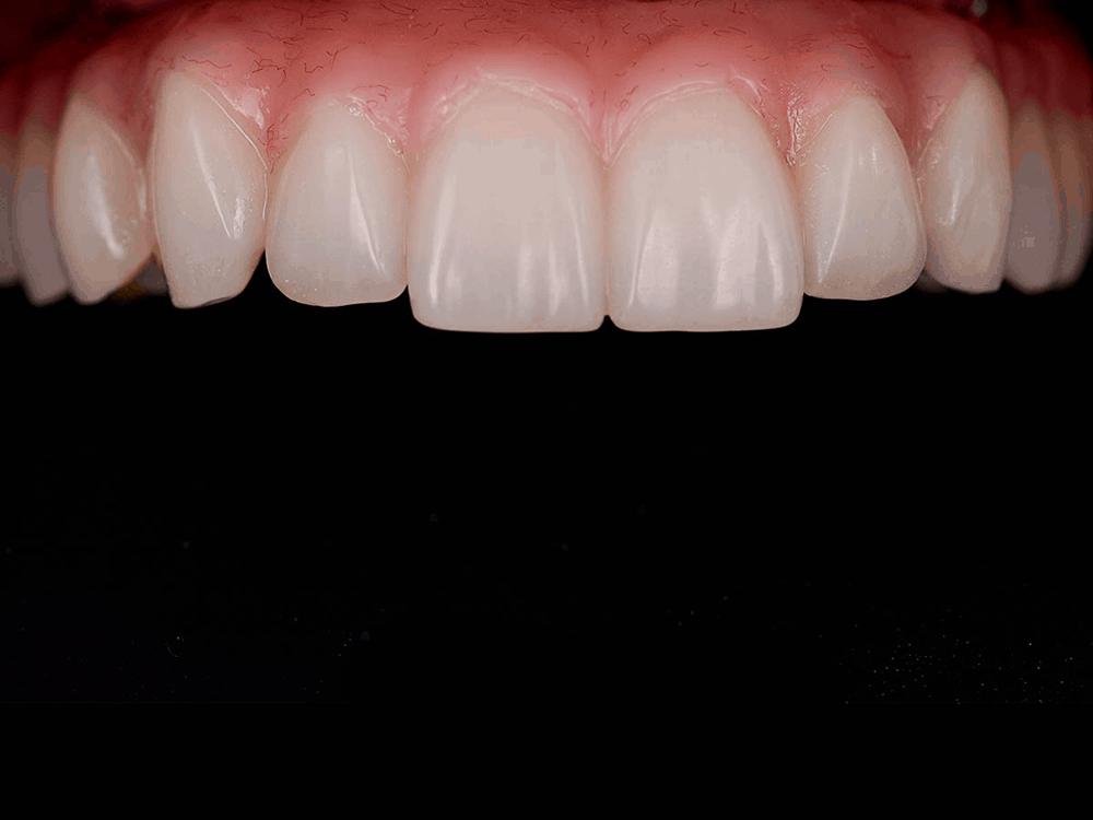 Jayne's beautiful new upper teeth
