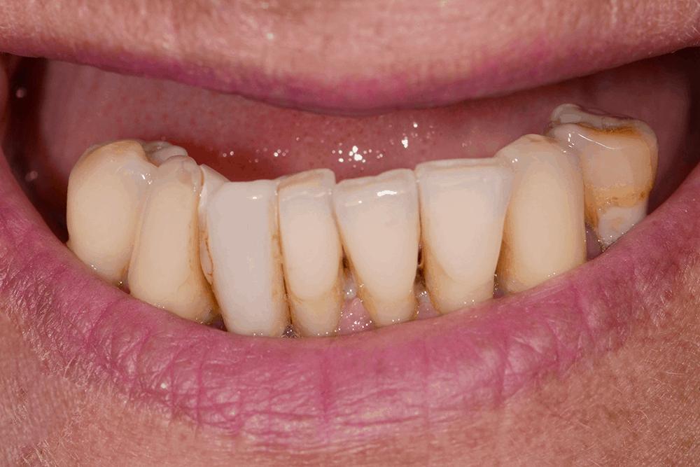 Jayne teeth before smile transformation
