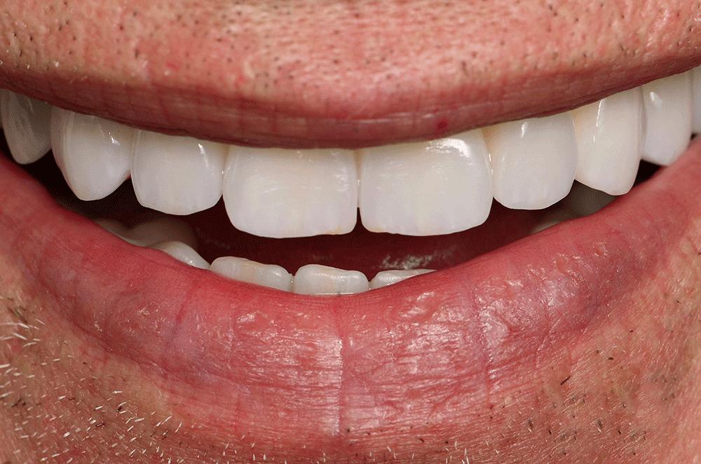ArtLab Dentistry patient smiling after all-on-4 dental implant restorations