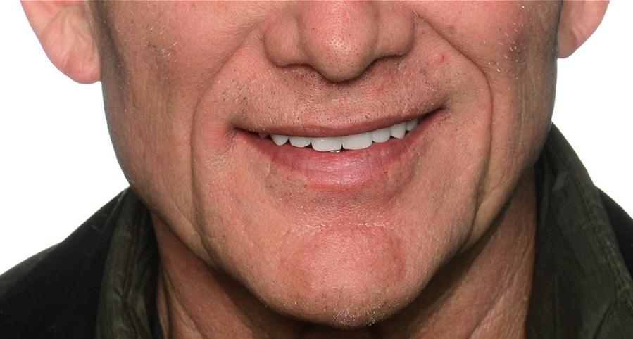 ArtLab Dentistry patient smile after restorations completed