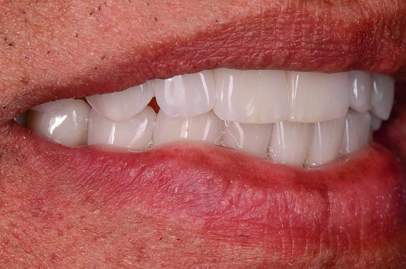 Dental restoration with dental implants at ArtLab Dentistry