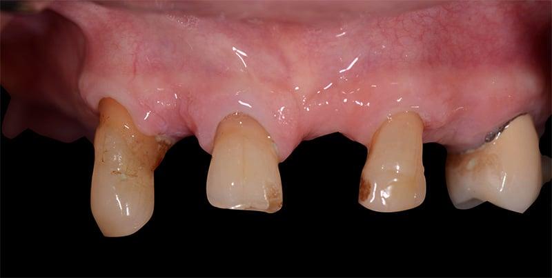 Dental restoration performed at ArtLab Dentistry
