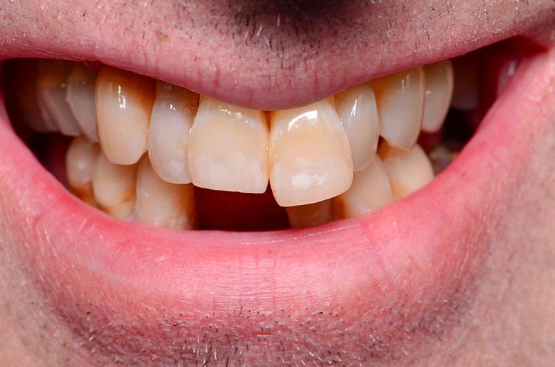 Solution: All-On-4® Dental Implants