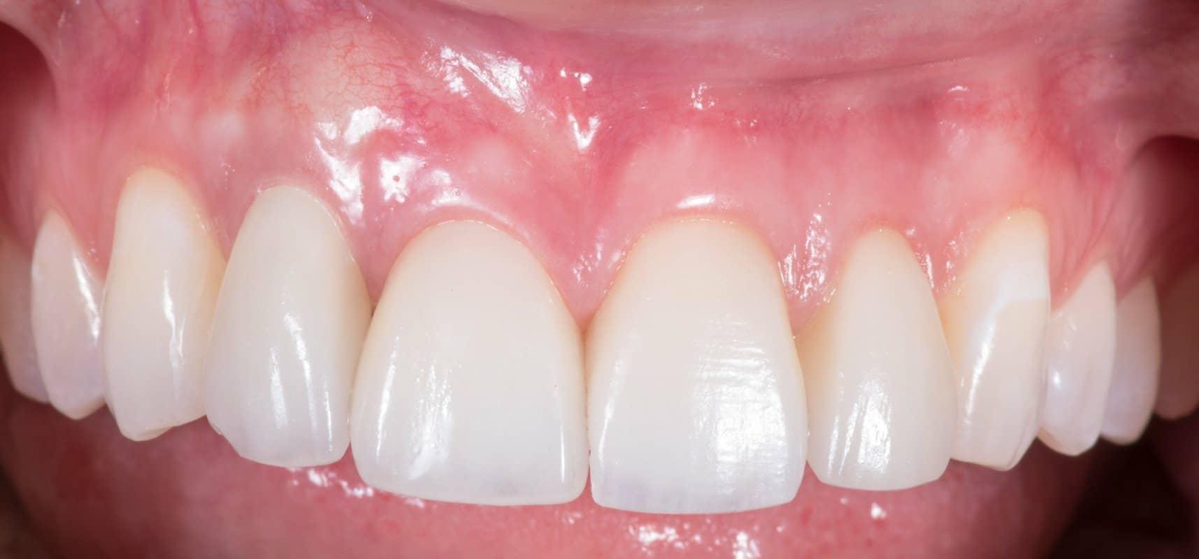 ArtLab Dentistry patient Alicia after restoration treatment.