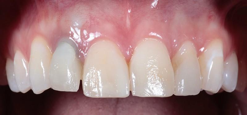 ArtLab Dentistry patient Alicia before restoration treatment.