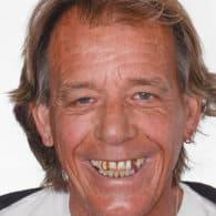 John J. before dental implants.