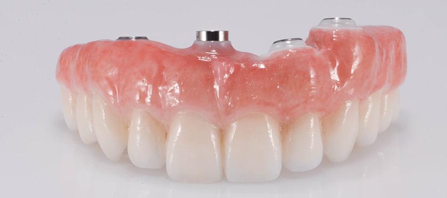 Final Implant restoration for Dr. Libbe
