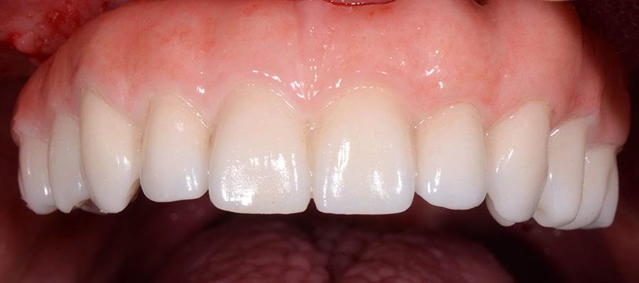 ArtLab Dentistry upper jaw all-on-4