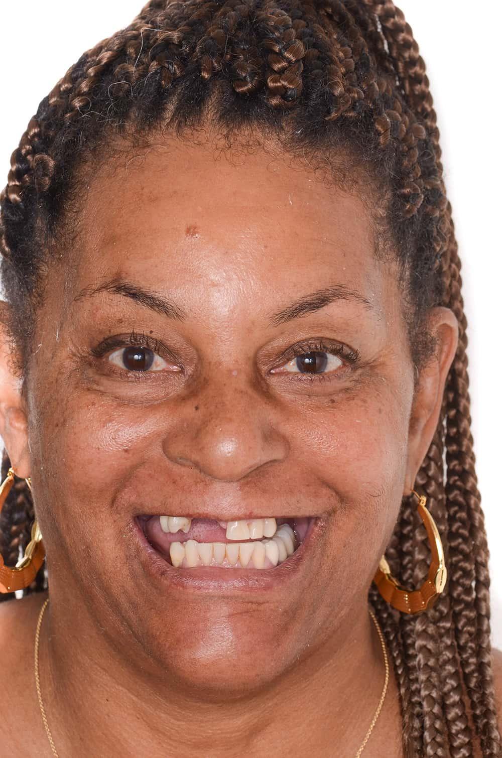 ArtLab Dentistry patient before dental implants restoration